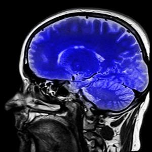 neuronales marketing eCommerce